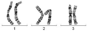 Chromosomenanalyse